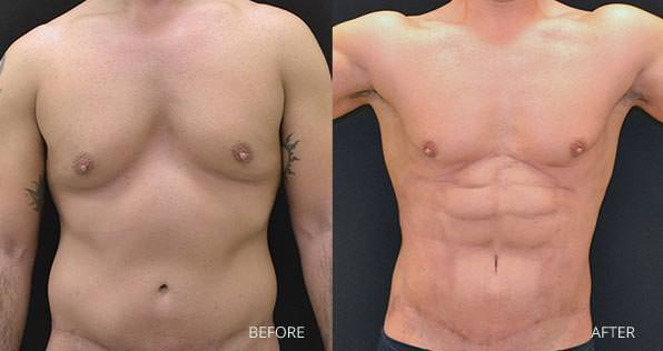 High Definition Liposuction Before & After Photo 1